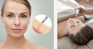 anti-aging-therapie-seyo